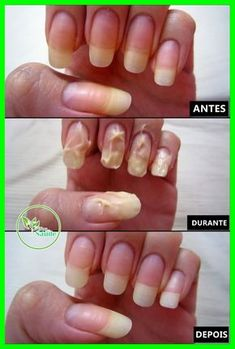 Just wanted to share with you girls how I whiten my nails when it gets yellow cause of applying nail polish too often. This picture was taken sometime in last June though, which explains why were my nails so long in that picture. Makes me wonder how. Diy Nails, Cute Nails, Pretty Nails, Nail Whitening, Nagel Hacks, How To Grow Nails, How To Whiten Nails, Clean Nails, Nail Growth