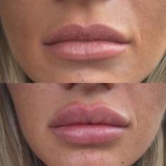 Lip Surgery, Face Fillers, Micro Blading, Thin Lips, Nude Lipstick, Make Me Up, Facials, Dental, Cosmetics
