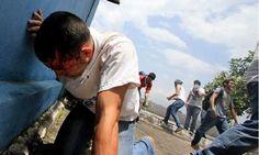 Sigue la represión en Venezuela: las protestas dejaron una treintena de heridos - http://www.esnoticiaveracruz.com/sigue-la-represion-en-venezuela-las-protestas-dejaron-una-treintena-de-heridos/