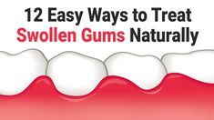 In medical terminology, swollen gums are known as gingival swelling or gingivitis. Here are quick home remedies for treating swollen gums. Swollen Gums Remedy, Gum Inflammation, Calendula Benefits, Coconut Health Benefits, Healthy Oils, Healthy Teeth, Mouthwash, Oral Health, Home Remedies