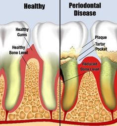 Natural Cures For Periodontal Disease - How To Cure Periodontal Disease Naturally | Search Herbal Remedy