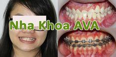Niềng răng hô là phương pháp niềng răng bị hô giúp cho bạn lấy lại chức năng răng, thẩm mỹ, thoải mái giao tiếp nâng cao chất lượng cuộc sống. Nha Khoa AVA Halloween Face Makeup