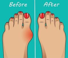 Kidney Detox Cleanse, Bunion Shoes, Gel Toes, Foot Pain, Yoga For Weight Loss, Feet Care, Health And Wellbeing, Health Remedies, Pain Relief