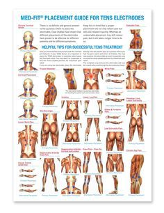 tens unit placement chart - Google Search