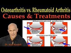 Osteoarthritis vs. Rheumatoid Arthritis (Causes & Remedies) - Dr. Alan Mandell D.C. - YouTube