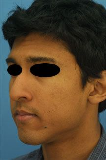 Welcome to Rhinoplasty Master -- your guide to Dr. Philip J. Miller's pract. Ethnic Rhinoplasty, Rhinoplasty Surgery, Nose Surgery, Rhinoplasty Before And After, Round Sunglasses, Mens Sunglasses, York, Website, City