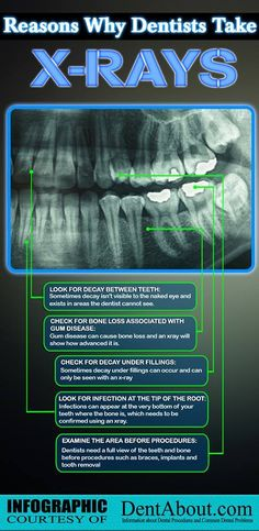 Did you know that x-rays can help us detect bone loss and infections? For more important information about x-rays, please visit http://dentistinwilmingtonde.com/.