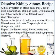 Dissolve a kidney stone