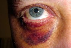 bruised eye - Google Search