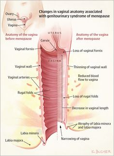 Vaginal and urinary problems that arise during and after menopause are both common and treatable.During menopause, levels of estrogen, an important hormone in w Becoming A Nurse Practitioner, Female Reproductive System, Menopause Symptoms, Medical Field, Medical Science, Nclex, Medical Conditions, Women's Health, Lesbian Art