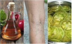 frunze tare cu varicoză exemplu maritim în varicoză