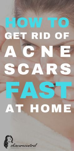 #Acne is the scourge of our pubescent years. The unsightly #blemishes on their #faces are a source of deep embarrassment for many teenagers and even #adults. #AcneScars #acnetreatmentathome #acnehomeremedies