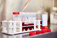 Lifechanging discovery as cord blood is found to alleviate symptoms of GvHD