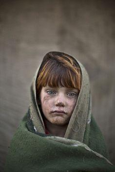 Laiba Hazrat, zes jaar oud // AP-fotograaf Muhammed Museisen