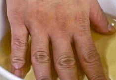 Remedies Arthritis If you suffer from joint pain, you need to read this! - If you suffer from joint pain, you need to read this! Severe Arthritis, Arthritis Relief, Rheumatoid Arthritis Symptoms, Arthritis Treatment, Pain Relief, Le Mal A Dit, Natural Home Remedies, Holistic Remedies, Apple Cider Vinegar