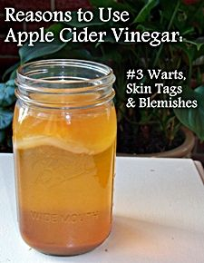 Apple cider vinegar for skin tags.  http://www.skintagsgone.com/apple-cider-vinegar-for-skin-tags/