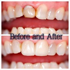 87 Best Before And After Images Dental Care Dentistry Dental Caps