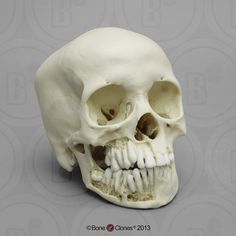 12-year-old Human Child Skull, with Dentition Exposed - Bone Clones, Inc. - Osteological Reproductions