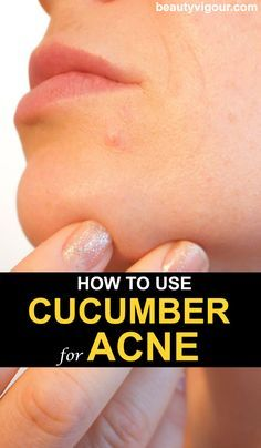 How to Use Cucumber for Acne