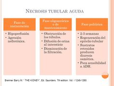 Resultado de imagen de necrosis tubular aguda