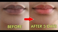 Lips Will Be Shining With This Little Therapy #Howtohealth