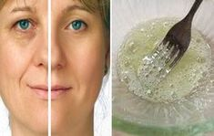 Look Younger In 5 Minutes, Face lift Mask That Left Plastic Surgeons Speechless Younger Skin, Look Younger, Wrinkle Cream For Men, Diy Beauty, Beauty Hacks, Korean Look, Banana Face Mask, Charcoal Face Mask, Homemade Face Masks
