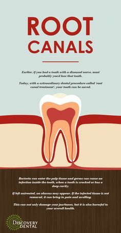 Effective Root Canal treatment in Issaquah http://tmiky.com/pinterest