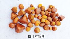 Dissolve Gallstones without Surgery - The Ultimate Guide