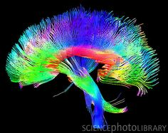 Brain pathways. Coloured 3-dimensional magnetic resonance imaging (MRI) scan of the white matter pathways of the brain