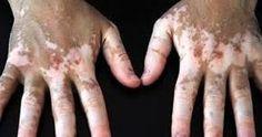 Vitiligo halk arasın da ( Ala ) hastalığı olarakta bilinir. Vücudumuz da pigmet ölümlerin den oluşan ve karaciğer rahatsızlığının da ...