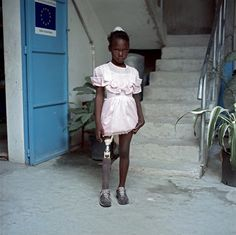 Survivors childrens or the Haiti earthquake - World Photography Organisation | Save the Children Competition |  Phtoto by Cobelo | Mirlanda Pierre. 11 years old. She lost her right leg in the earthquake and her left arm was severely burned and now has limited mobility with it. Her prosthesis was donated by Handicap International. To go to her therapy every three months, she must travel two hours from his neighborhood in the outskirts of the city of Port au Prince.