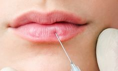 Lip Plumping Injections: Proven long-lasting result