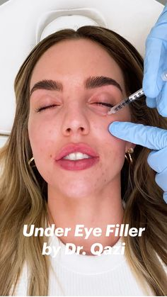 Under Eye Fillers, Face Fillers, Botox Fillers, Dermal Fillers, Botox Injection Sites, Botox Injections, Botox Before And After, Eye Makeup, Make Up