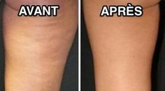 Reduce cellulite in just 4 treatments. For more information about cellulite treatment Birmingham UK. Causes Of Cellulite, Cellulite Remedies, Cellulite Exercises, Cellulite Workout, Reduce Cellulite, Fitness Tips, Health Fitness, Health Diet, Fit Bodies