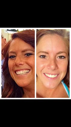 Amazing results with our Reverse regimen for brown spots, dark marks and dullness.