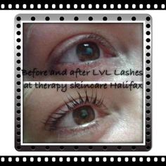 lvl by alex at Therapy Skincare Lvl Lashes, Skincare, Therapy, Skin Care, Skin Treatments, Asian Skincare