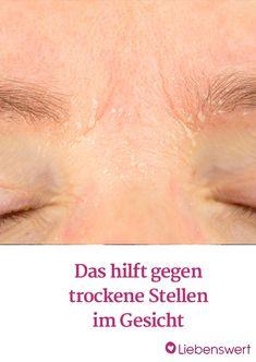 Vor allem im Winter treten sie auf: Trockene Stellen im Gesicht, die sich mit Make-up nicht überdecken lassen.