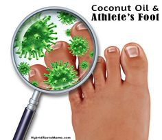 Coconut Oil for Athlete's Foot (Tinea Pedis)  Mix two tablespoons of coconut oil along with 10 drops of oregano oil, tea tree oil, garlic oil, clove oil, and/or peppermint oil. -