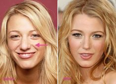 Blake Lively Nose Job Photo looks young and appears to be 20 years off of current age. It is the plastic surgery that keeps Blake Lively Nose Job Photo loo. Blake Lively Nose Job Photo good and bad cosmetic surgery before and after pictures photos. Rhinoplasty Surgery, Nose Surgery, Plastic Surgery Photos, Celebrity Plastic Surgery, Blake Lively Nase, Blake Lively Plastic Surgery, Bulbous Nose, Plastic Surgery Before After, Rhinoplasty Before And After