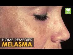 Melasma Treatment (Cure) - Home Remedies | Health Tips - YouTube
