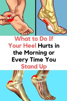 Bonus: How to prevent heel pain Only wear comfortable shoes with insoles. Don`t overstrain during workouts, increase the load gradually, and warm up before workout. Watch your weight. Excess weight can adversely… Heel Spur Relief, Foot Pain Relief, Plantar Fasciitis Exercises, Plantar Fasciitis Treatment, Plantar Fasciitis Shoes, Warm Ups Before Workout, Foot Exercises, Foot Stretches, Nerve Pain