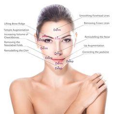 HA Hyaluronic Acid Dermal Fillers Facial Filler LipsFiller AntiWrinkle – Chokro filler before and after Facial Fillers, Dermal Fillers, Lip Fillers, Hyaluronic Acid Lips, Hyaluronic Acid Fillers, Face Injections, Nasolabial Folds, Wrinkle Filler, Lip Augmentation