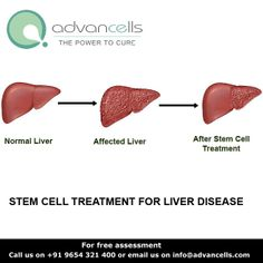 Using #Stem #Cell #Therapy to treat #liver damage is still very much at the experimental stage but the possibilities of harnessing Stem Cells as a cure is immense. At #Advancells, our prime focus is on drug-free stem cell #treatment, which aims at recovering the lost functionality of the liver caused by the #chronic ailments including #hepatitis C.