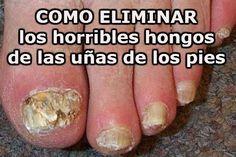 Receta para eliminar los hongos de las uñas para siempre, con solo 3 ingredientes - TuSalud.Info