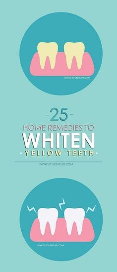 How to get rid of yellow teeth and make it whiten? Here are list of 25 best home remedies for yellow teeth which keeps your teeth always white.