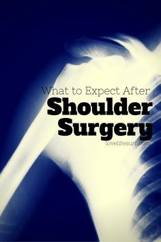 If you're having shoulder surgery - rotator cuff tear, labral tear and slap tear - here's what to expect and tips to help you recover and get through the life at home during first two weeks post-surgery. Hint - you might need help putting up your hair. Rotator Cuff Exercises, Rotator Cuff Tear, Way Of Life, The Life, Shoulder Surgery Recovery, Shoulder Replacement Surgery, Shoulder Rehab, Shoulder Injuries, Shoulder Workout