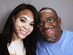Inheriting-a-rare-skin-condition-and-the-ability-to-laugh-about-it... this is for all my Vitiligo people out there!