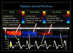 Ultrasound Physics, Vascular Ultrasound, Ultrasound Sonography, Cardiac Sonography, Cardiology, Physiology, Nursing, Anatomy, School