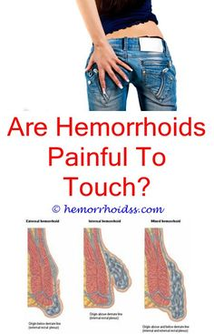 Can Hemorrhoids Cause Bad Smell? what does a thrombosed hemorrhoid look like?How To Get Rid Of Bleeding Hemorrhoids During Pregnancy? how to soothe hemorrhoids home remedies?What Does A Thrombosed Hemorrhoid Look Like? Home Remedies For Hemorrhoids, Hemorrhoid Removal, Getting Rid Of Hemorrhoids, Natural Treatments, Natural Remedies