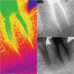 #Endodontics #RootCanal #Endodoncia #Endodontic #Endodontia #Endo #Root #Dentist #Dentistry #EndoLovers #Odontolovers #dental #teeth Endo - Second Lower Molar by drjcrespo Our Root Canals Page: http://www.myimagedental.com/services/general-dentistry/root-canals/ Other General Dentistry services we offer: http://www.myimagedental.com/services/general-dentistry/ Google My Business: https://plus.google.com/ImageDentalStockton/about Our Yelp Page: http://www.yelp.com/biz/image-dental-stockton-3…